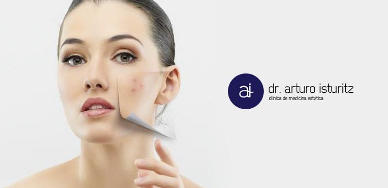 tratamiento del acne clinica Isturitz