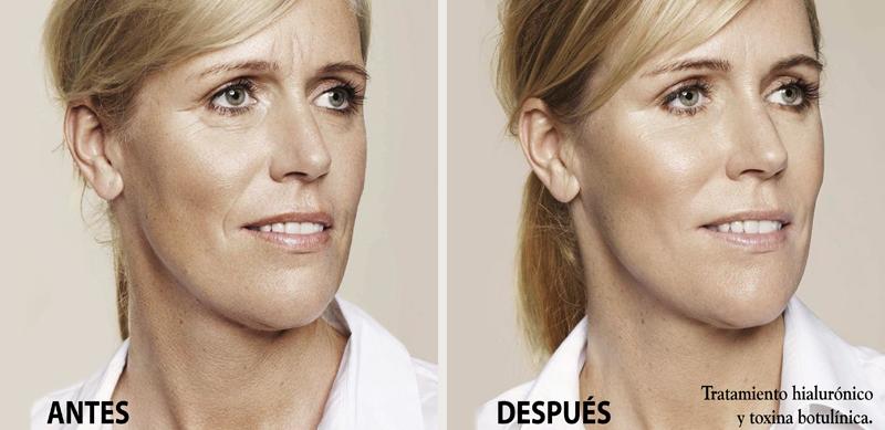 rejuvenecimiento acido hialuronico botox clinica Isturitz