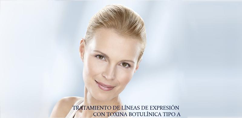 tratamiento lineas de expresión botox clinica Isturitz