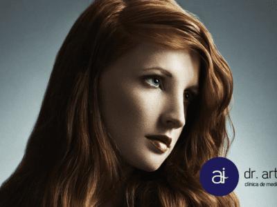Tratamiento alopecia androgénico Clínica Isturitz