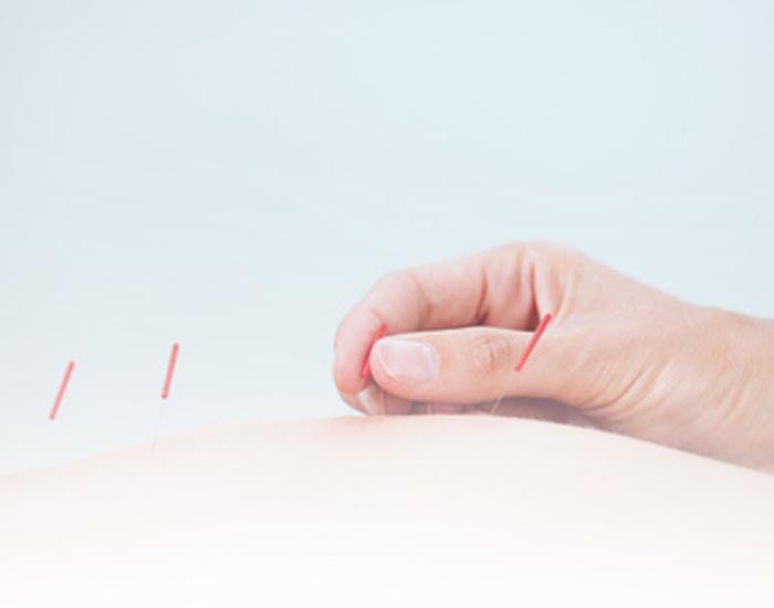 tratamiento acupuntura - Clínica Isturitz | medicina estética – Donostia San Sebastián